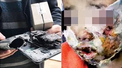 冯男称三星Note4蓦地爆炸,女的脸面和双手被炸伤,可能会毁容。