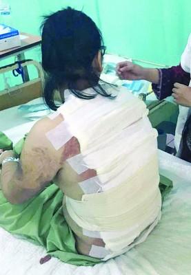 去年怀疑被沸水烫伤的阿盈,经过报道后,网民议论纷纷。