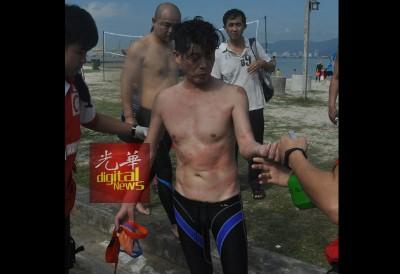 内部同样名参赛者,盖腹部被水母蜇伤出现大片红肿,必需送院治疗。