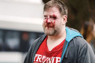 撑特朗普游行在加州演成流血冲突,有人头破血流。