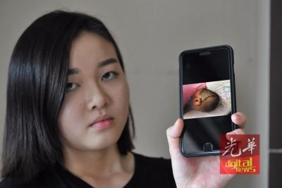 黄迈潼朝媒体展示父亲的伤势。