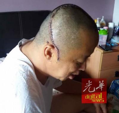 被害人黄金安当手术了後,头留下明显缝针的印痕,同一到后尚生后遗症。