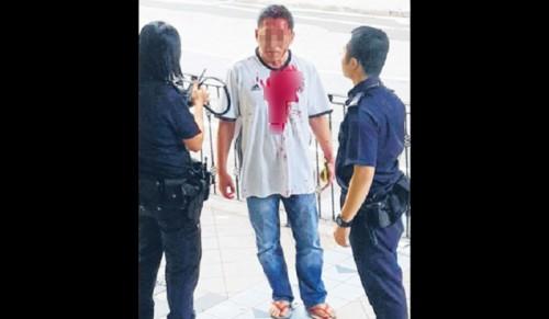 44岁阿叔被打得头破血流。