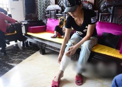 路女脸部及小腿都被烧伤,脚上现时还需以纱布包扎住。