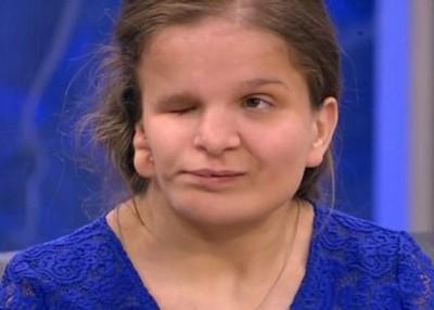 巴黛娃因天生脸部畸形,甫出生就被母亲遗弃在孤儿院。