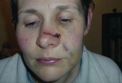 皮尔逊脸部有多处伤痕。