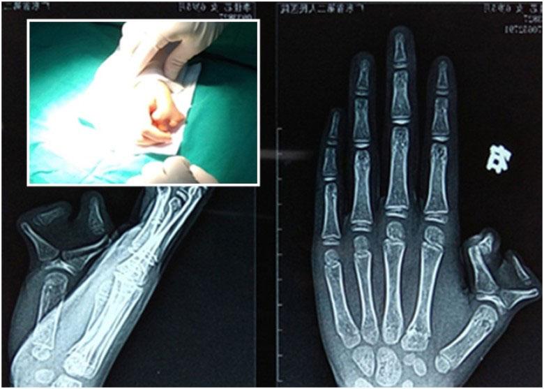 """朵朵的右手拇指出现""""多指畸形"""",形似一个蟹钳。"""
