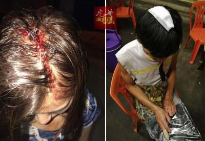 女性网民声称遭龙八国际登录老板打爆头,连以脸书上载受伤的相片。并且为贴上平等张男子头部被击伤的相片。