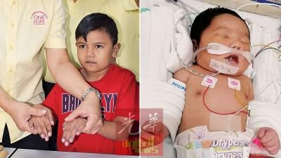 (左)先天性的心脏病导致哈菲兹的嘴唇及手指甲发紫。 (右)爱莎须在三周大前动手术。