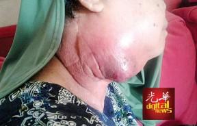 法丽达患上第三期的扁桃腺鳞状癌,颈部开始红肿发脓。