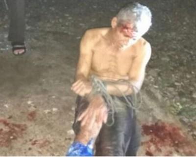 那鲁斯汀遭警方射伤右脚后被捕。