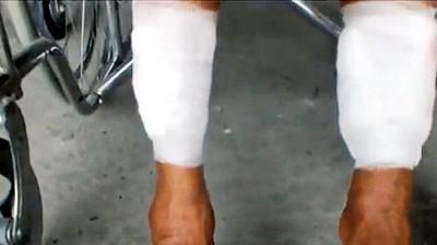 尼双脚因受到吞食的由,始现出溃烂。