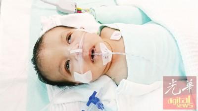 两个月大的女婴伊娜拉每天靠着辅助器呼吸及注射前列腺素,她继续4万5000令吉进行心疾手术。