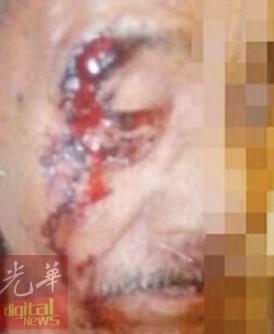 71岁老父被儿子怒打重伤,眼眉缝7针。