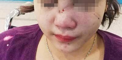 女受害者因取消载送服务,引起司机不满而被打伤。(图取自脸书)(档案照)