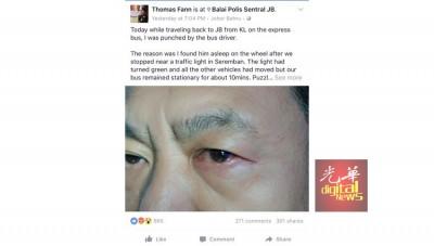 范平东在脸书撰文,揭发本身在乘搭长巴返回新山时,遭长巴司机殴打的经过。