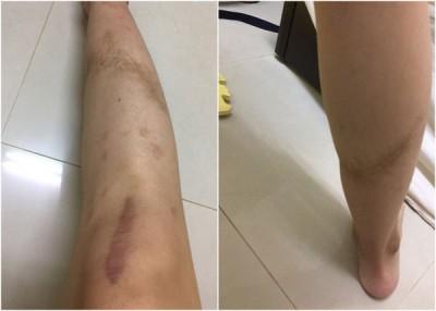 女人脚上留下植皮后伤口的像。