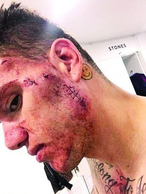 埃德森上传受伤照,但无损他为曼市披甲的决心。