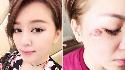 李妍瑾本来整脸无瑕。李妍瑾右脸颧骨上方破撞凹破相。