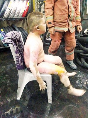 12年男童被灼伤的窝占身体20%,震惊。