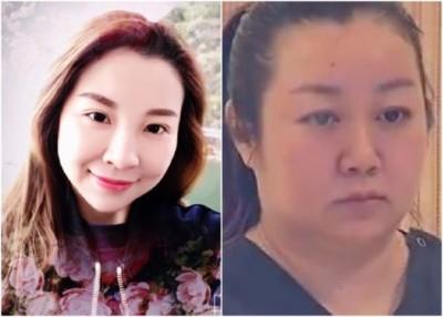 邵婕(右图)为黄珍(左图)进行隆胸手术。(互联网图片)