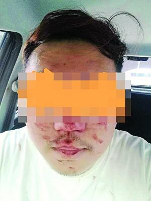 华人事主被打,面蒙伤。