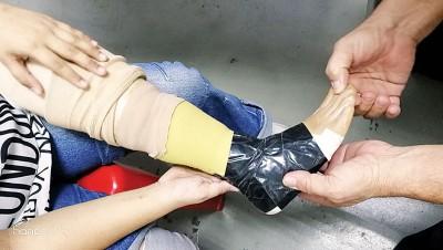 伍婉瑢多年使用的义肢已经多处破损,并以胶布来包着。