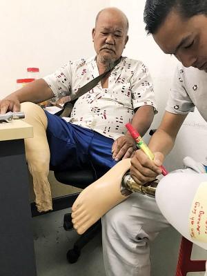 陈亚成在试穿量身定制的义肢。