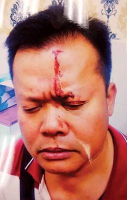 卢天发头被打伤。