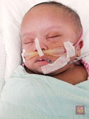 莫哈默阿尔法特出世不仅给确诊是唐氏症儿,尚患有心脏有孔以及睡眠呼吸停止问题。