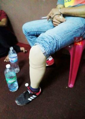 :装义肢的残疾人士涉毒被捕。