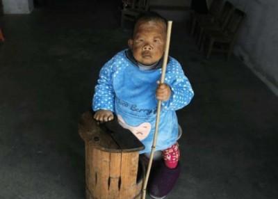 王天加大2春时患病,从此再没有生,身高仅80厘米。