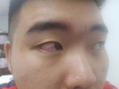 伤者在脸书上传右眼受伤24时后仍布满红丝的相片。