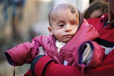 卡里姆于政府军的空袭中去左眼和妈妈。(法新社照片)