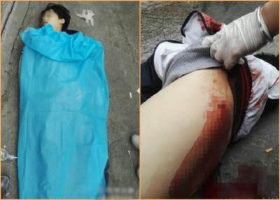 郭晟当场证实身亡,其背部有明显刀伤。