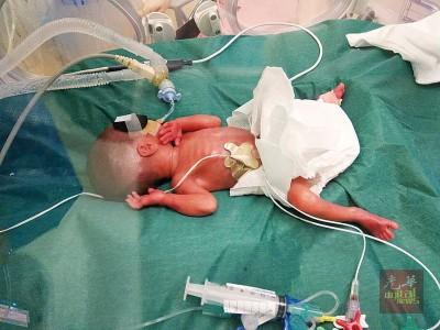胎龄24周的晓柔,出世时体重才655克。