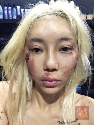 林云日前在脸书上张贴自己受伤的照片。