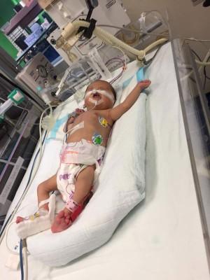 小杏颐将在下周二进行手术,请为她祈福。