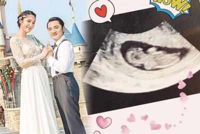 王祖蓝及太太李亚男晒超声波照,宣布有喜。