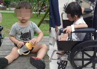 (左)男童受虐前的像。(右)男童目前刚留医观察。