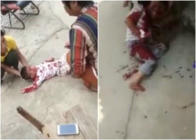 同样名小童被砍伤,另有伤者浑身是经,倒卧路边。