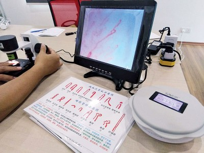 除防辐射外,刘德福和团队研发的消除器也可促进血液循环,找到一个创新的新方向。