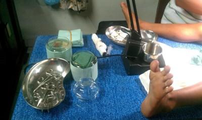 割礼切断龟头,少年母亲起诉2政府医院医生疏失。