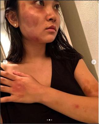 蒋劲夫对日本女友中浦悠花家暴。