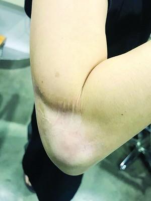 李氏右手因医疗失误导致肌肉萎缩,颇至见骨头。