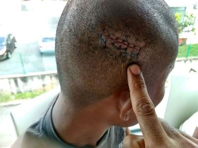 安蓝的头部被打伤缝了7针。
