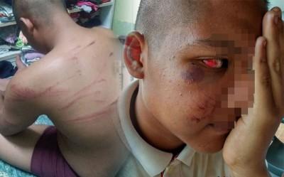 (左)戒毒者被虐打至背部伤痕累累。(右)安蓝的眼睛及脸颊被打红肿。