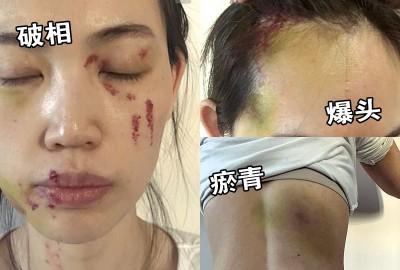 马蓉脸有血痕,轻微破相。(右上)马蓉被爆头,照片看来怵目惊心。(右下)马蓉背部也有瘀青。