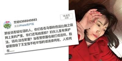 马蓉之前受伤照(右图)被酸摆拍,如今有挺她的网友爆她头破照为她发文叫屈。