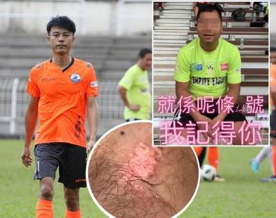 香港艺人李克勤来马进行友谊赛被踢伤后,在个人社交网站发泄不满。